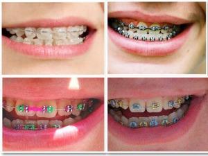 pilihan behel atau kawat gigi