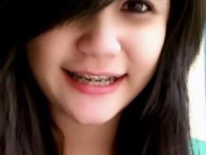 senyum behel bandung