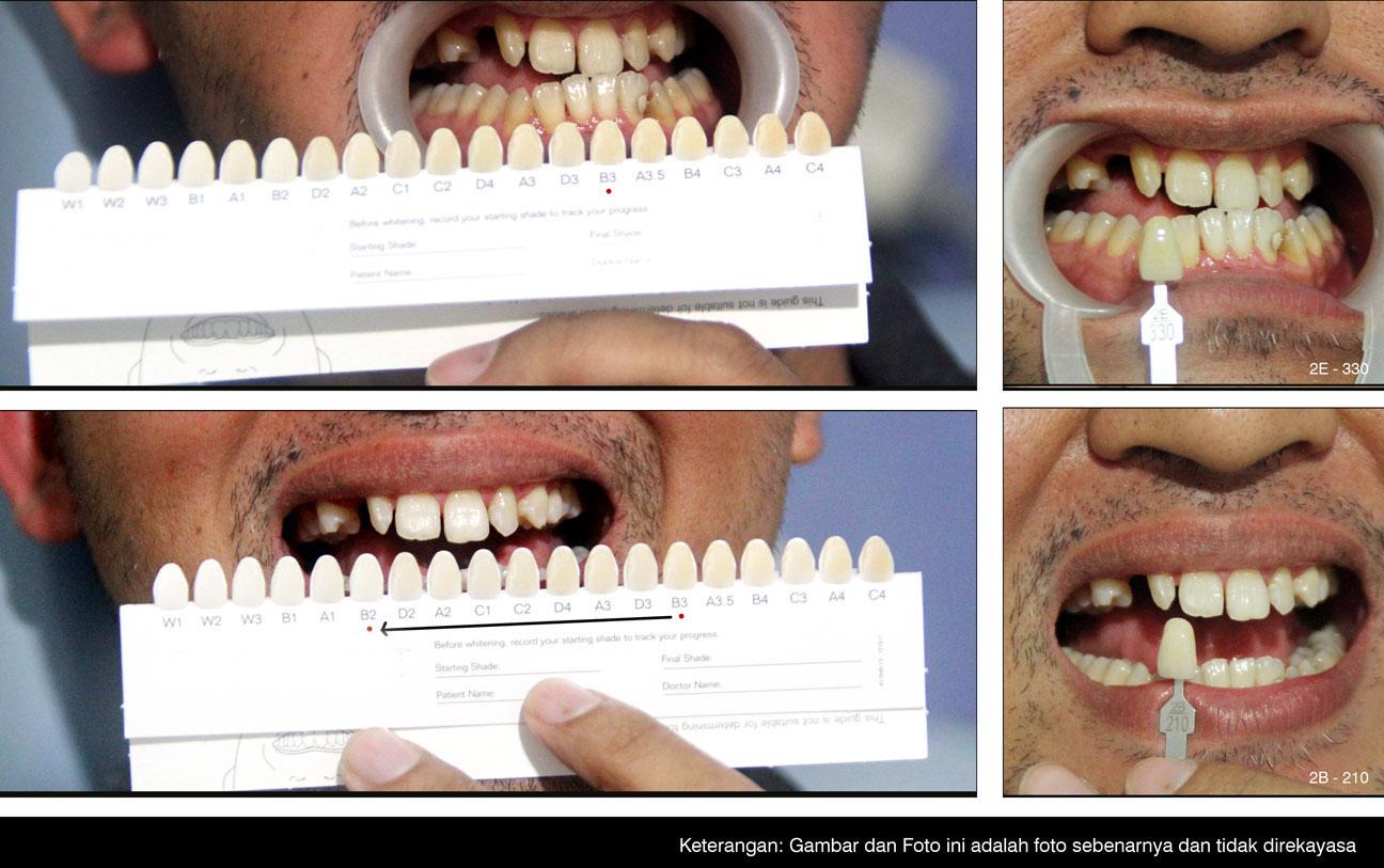 Pemutihan Gigi Dental 55 Bandung