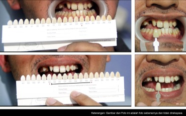 whitening sample