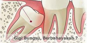 gigi-bungsu