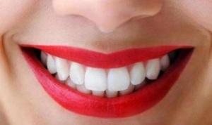 senyum sehat dan gigi kuat