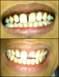 Memperbaiki gigi yg patah