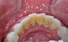 karang gigi