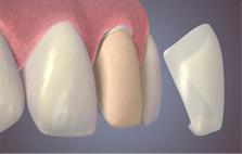 veneer dental55 bandung