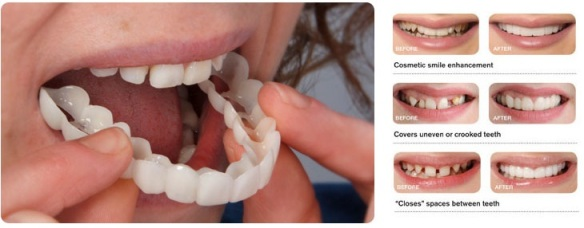 snap on smile 2 dental55