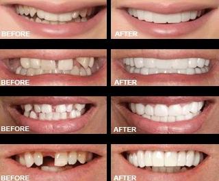 snap on smile dental55