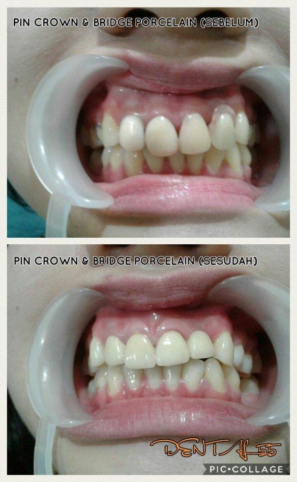 Contoh pembuatan crown metal porcelain